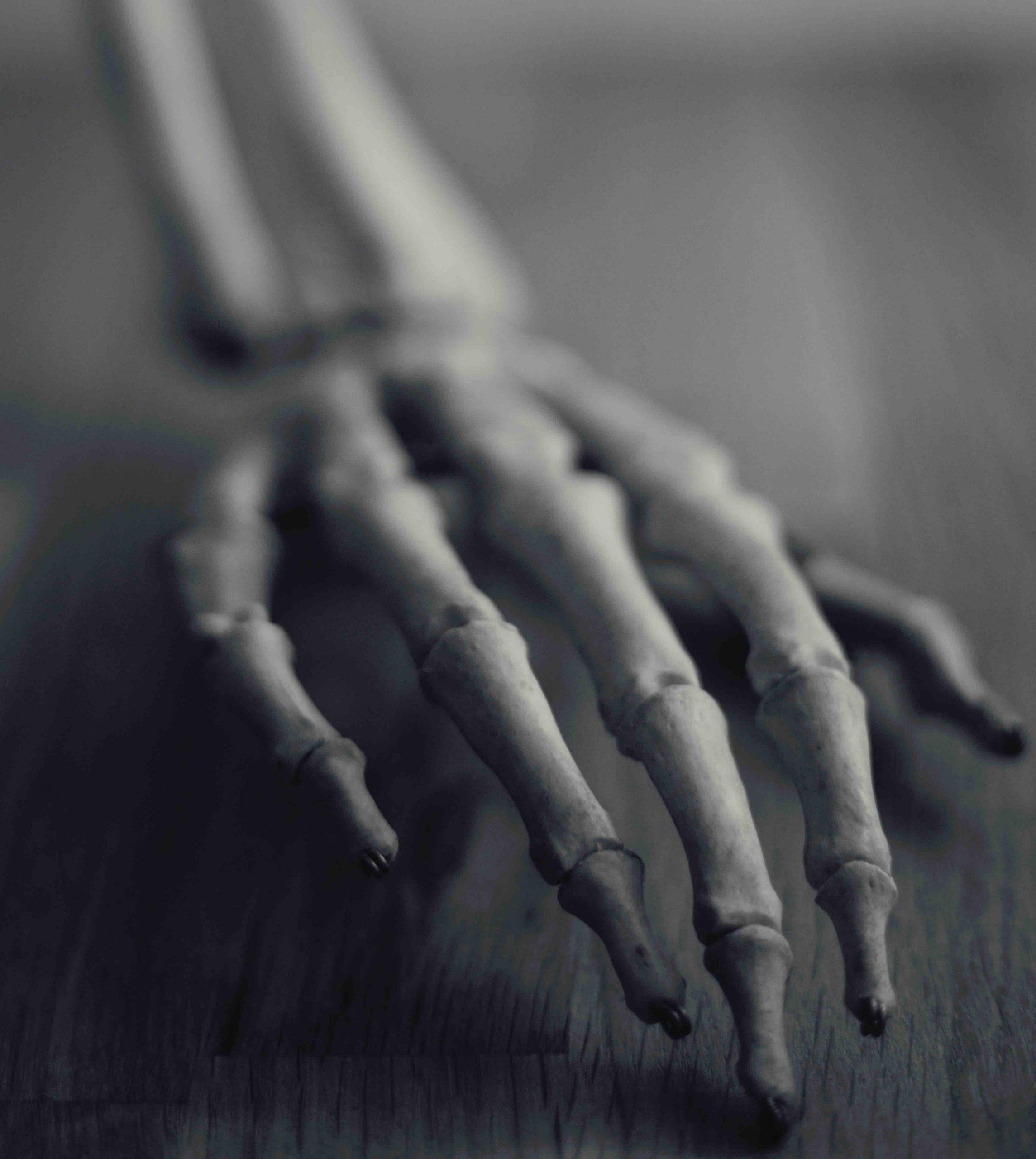 Soluciones Anti Artritis en Ortodinamics.com